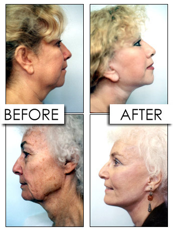 Vertical Facelift Surgery
