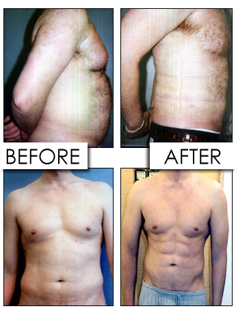 precise-liposuction