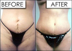 tummy-tuck-surgery