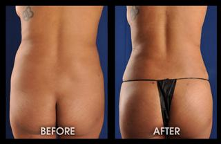 1-month-lipo-hips-fat-transfer-to-butt_Mobile