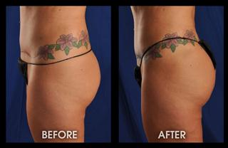 3-months-fat-transfer-and-lipo-hips_Mobile