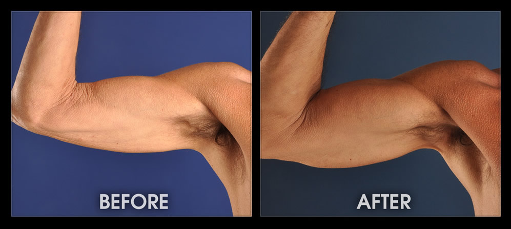 Tricep Implants - Male Muscle Augmentation