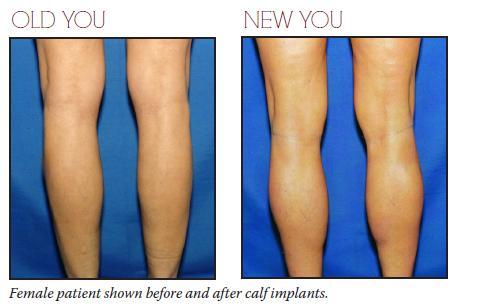 drchugay-female-patient-calf-implants