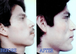Chin Sculpting Surgery