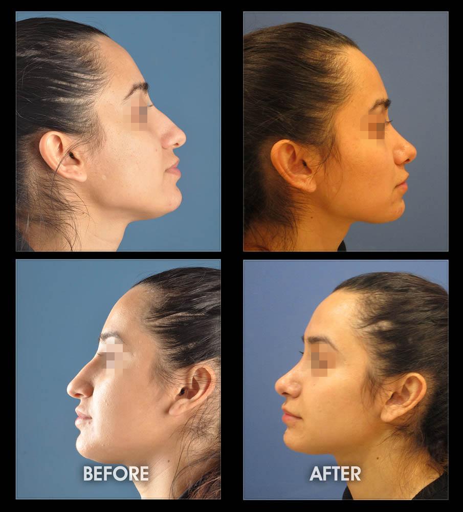 Nose Sculpting Surgery Rhinoplasty Long Beach Orange County