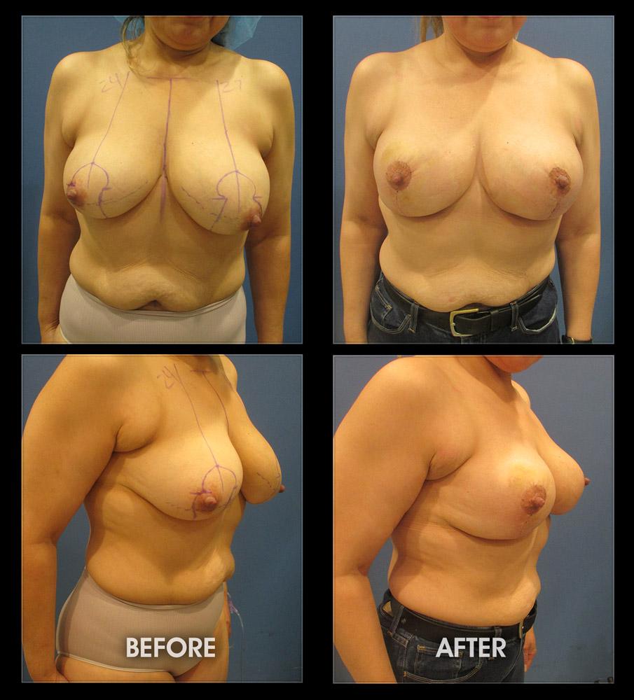 Fair fuck breast lift pics pussy stuffing
