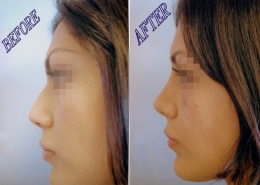 Nose Sculpting Surgery