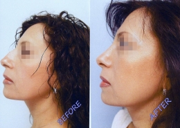 Nose Sculpting Surgery