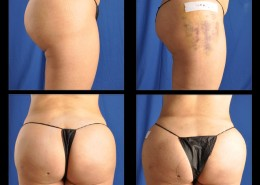 Hip / Thigh Augmentation