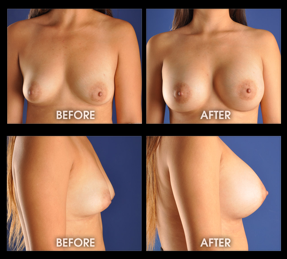 Nude breast enlargement sexy-4912