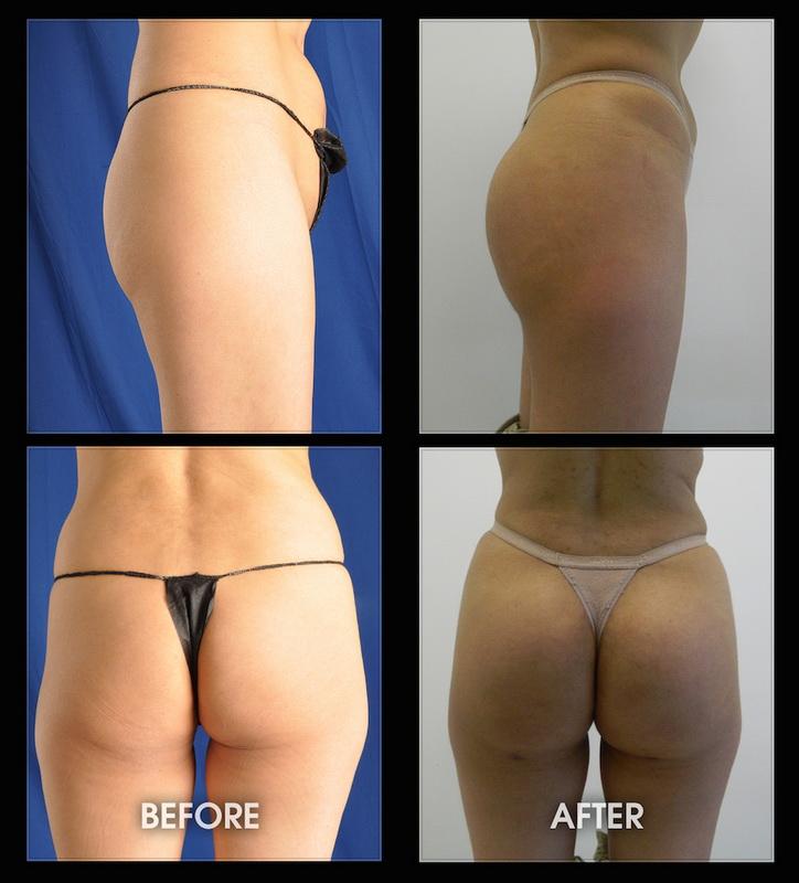 Butt augmentation pics — pic 3