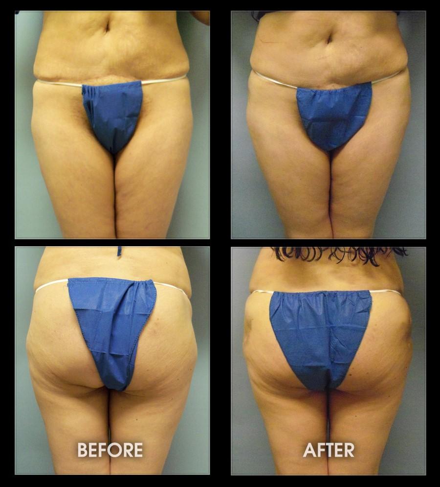 SoCal Phalloplasty, Penile Enlargement Surgery, Penis
