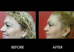 Crows Feet Surgery Before After Photos Feet