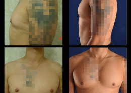 Pectoral Implants