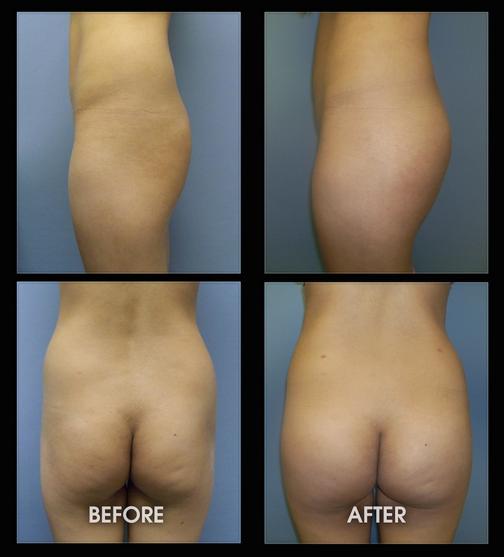 PMMA Penis Girth Enlargement Surgery LIFE Enhancement