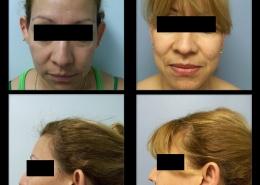 Ear Contouring Surgery
