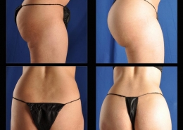 Buttock Augmentation | Implants