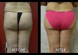 Hip / Thigh Augmentation