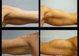 Bicep Implants
