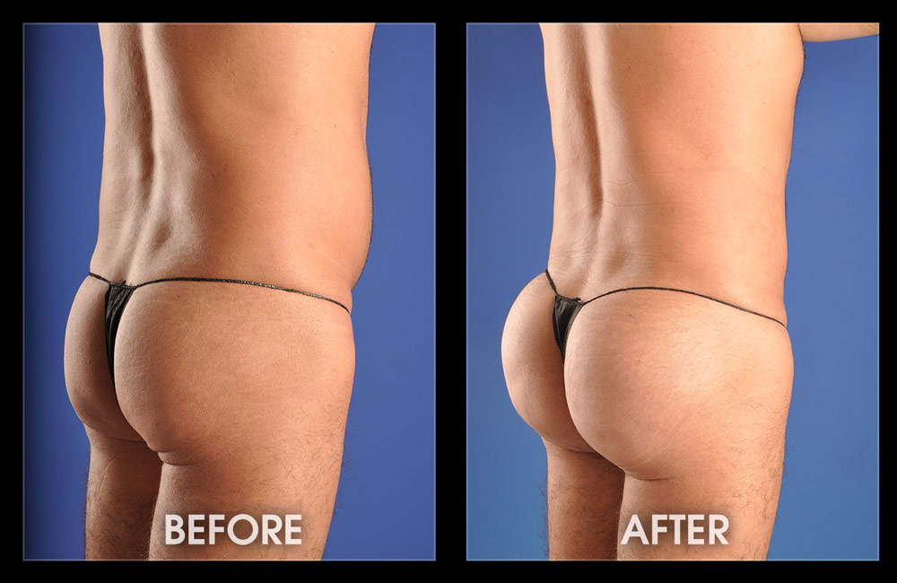 Reassignment surgery male to female pictures-6760