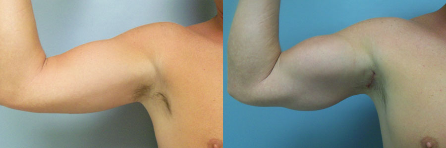 Bicep Implants - Images, Before And After Galleries, Long Beach, Ca-4759