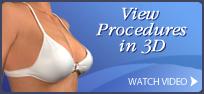 breast - banner_0000s_0001s_0000_200x90-Breast