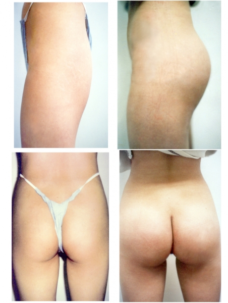 See thru latex panties