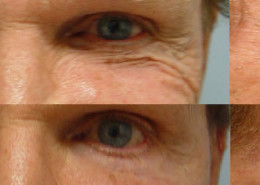 Crows Feet Surgery Before After Photos