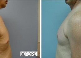 Deltoid Implants