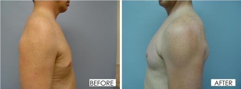Deltoid Implants
