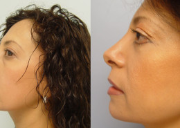 Eyelid and Nose Surgery