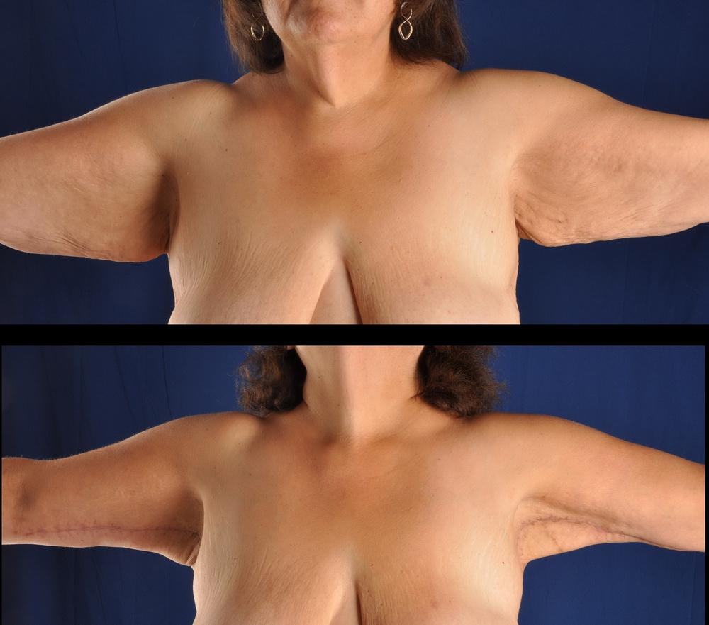 Fat deposit under armpit