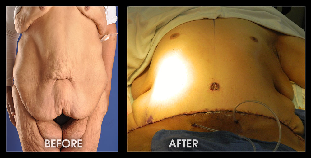 Liposuction Tummy Tuck Before And After Pictures