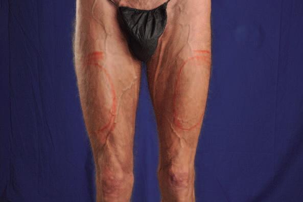 Quadriceps Implant: Cosmetic Improvement, Anterior Thigh ...