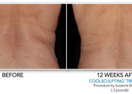 Coolsculpting Non-Surgical Fat Removal