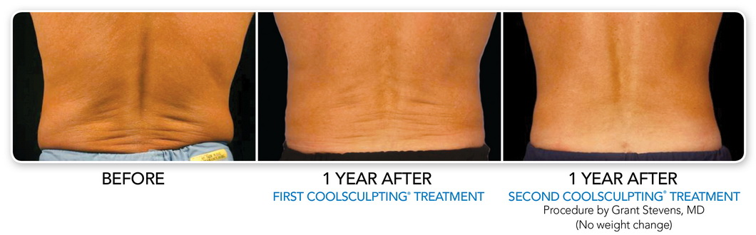 Before And After Galleries Coolsculpting Coolsmooth Non