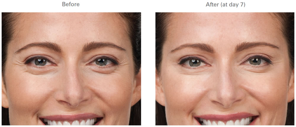 BOTOX | Crows Feet | Before and After Galleries | Pictures ...
