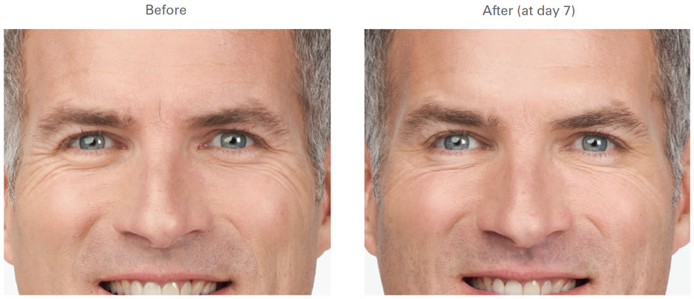 BOTOX | Crows Feet | Before and After Galleries | Pictures