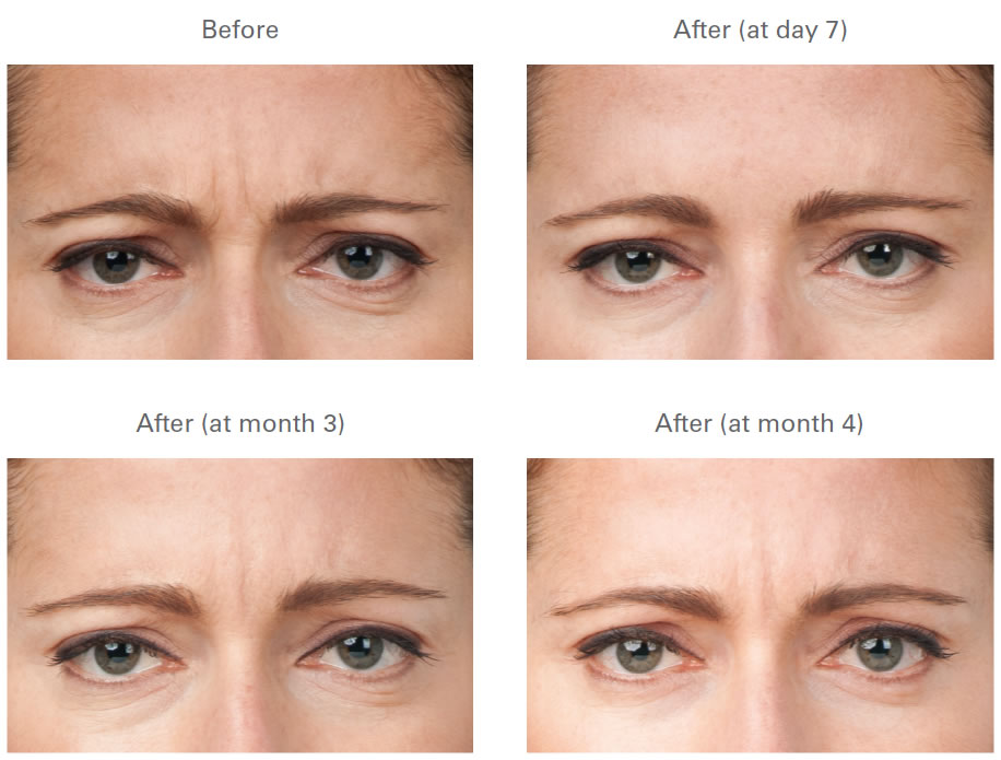 BOTOX | Before and After Galleries | Images | Photos ...