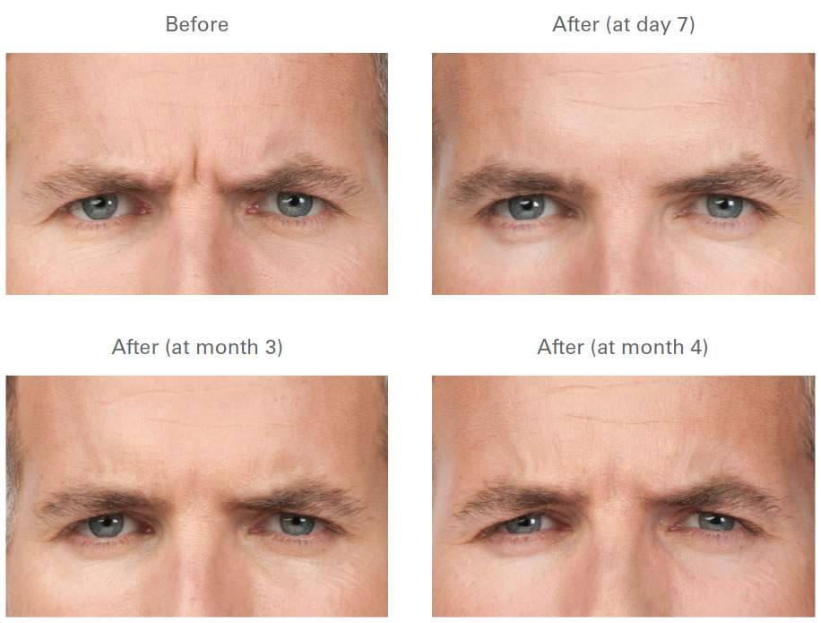 Botox Before And After Galleries Images Photos Chugay Cosmetic Surgery Medical Clinic Beverly Hills Long Beach California Ca