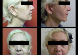 Cheek Sculpting Before and After Pictures