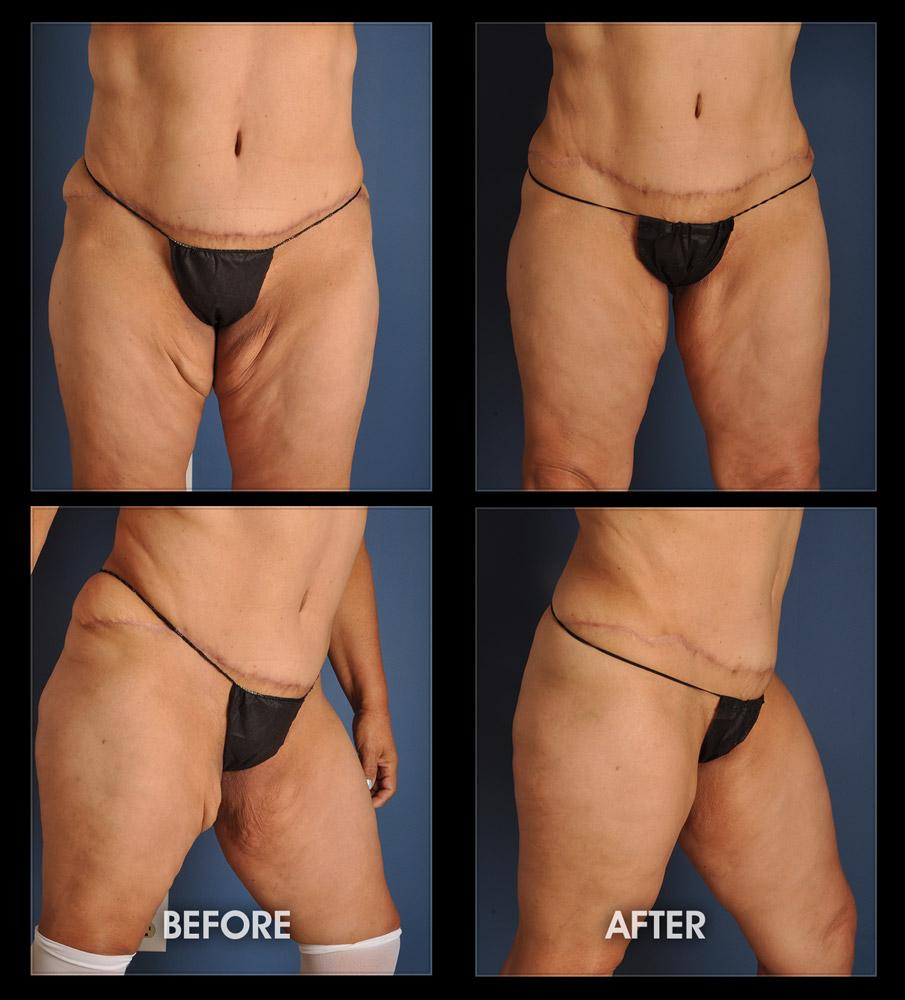Post Weight Loss Surgery Post Bariatric Surgery Chugay Cosmetic