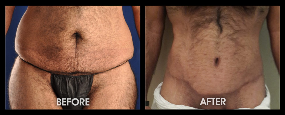 Weight Loss Post Bariatric Surgery Long Beach Irvine