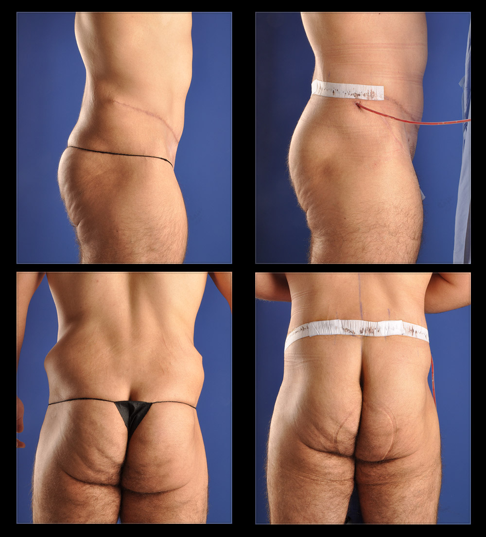 weight loss skin removal