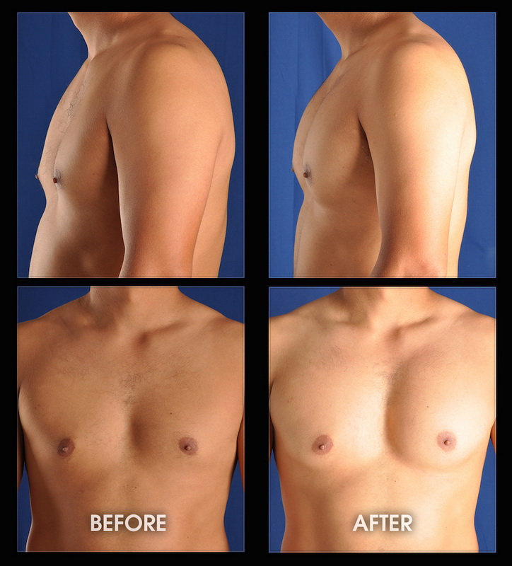 Long Beach California experts in muscle augmentation and implant surgery