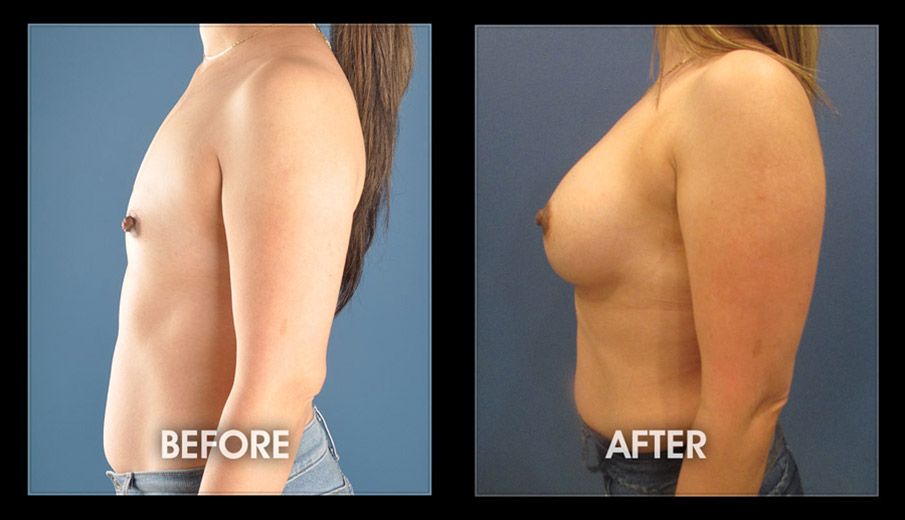 Breast Augmentation Surgery Implants Long Beach Orange County